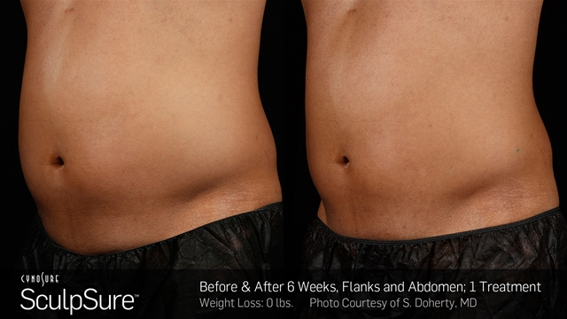 SculpSure for Fat Reduction in Memphis