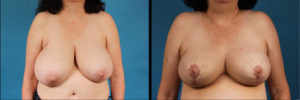 Dr. Kath breast reduction