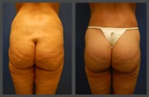 Brazilian Butt Lifts | Plastic Surgery Group of Memphis