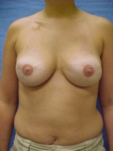 Breast Reconstruction | Plastic Surgery Group of Memphis