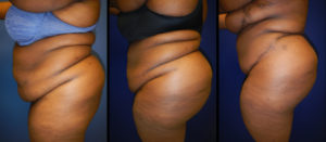 Before and After Brazilian Butt Lift