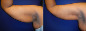 tavin arm lift before after