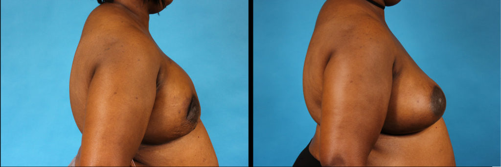 Bilateral Breast Reconstruction Before and After
