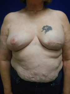 Pre-Pectoral Breast Reconstruction