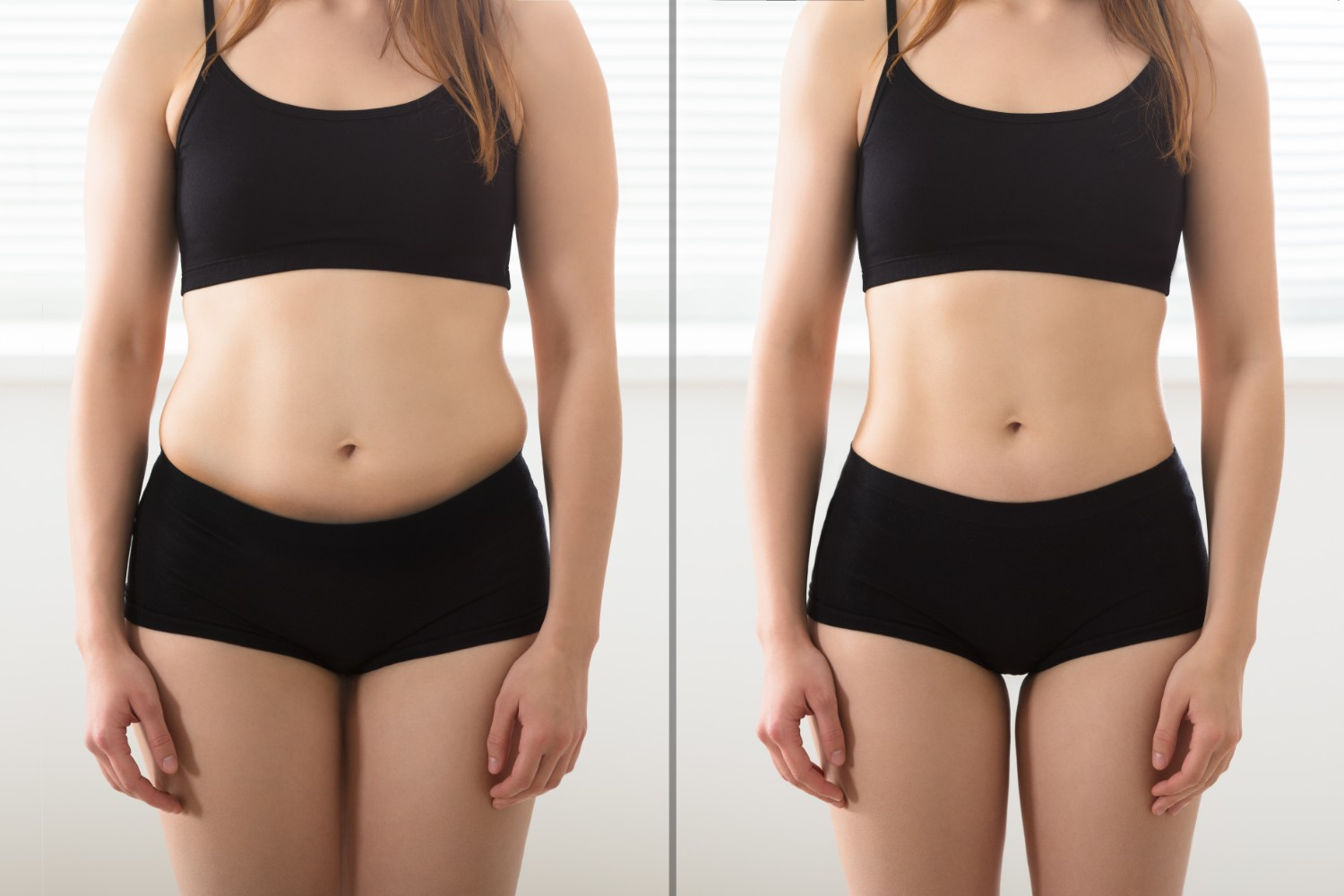 Everything You Need To Know About Abdominoplasty